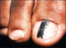 czarne plamki na paznokciach u nog