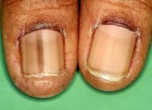 czarny paznokieć