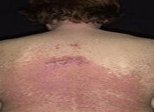 dariera choroba wypryski na plecach