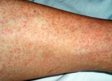 denga wysypka na skórze