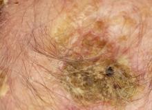 dermatoza krostkowa na głowie