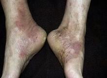 egzema na stopach i piętach
