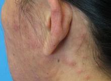 eozynofilia zapalenie mieszków włosowych na głowie