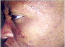 eozynofilowe zapalenie mieszków włosowych na twarzy