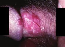 Erytroplazja Queyrata