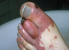 gangrena zdjęcia objawy