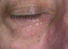 gruczolak potowy oko