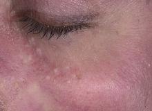 gruczolak potowy skóry