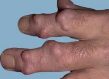 guzki reumatoidalne dłoni