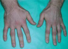 guzki reumatoidalne na palcach