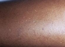 hipomelanoza