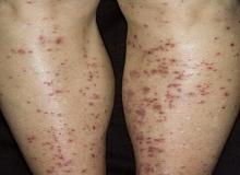 jak wygląda alergiczne zapalenie naczyń
