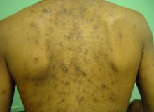 jak wygląda eozynofilowe zapalenie mieszków włosowych