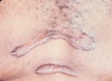 keloid skórny