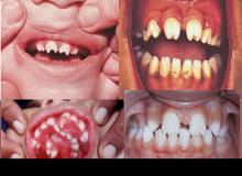 kiła syfilis wrodzony zdjęcia jamy ustnej