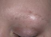 łysienie plackowate brwi