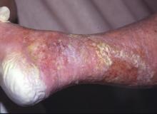 maceracja skóry pięty