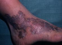 mięsak angiomatosis