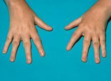młodzieńcze idiopatyczne zapalenie stawów na dłoniach foto