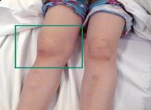 młodzieńcze przewlekłe zapalenie stawów foto