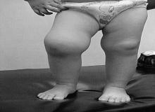 młodzieńcze reumatoidalne zapalenie stawów foto