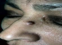 naczyniak na nosie u dorosłych