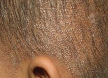 Nadmierne rogowacenie skóry głowy