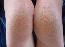 Nadmierne rogowacenie skóry na stopach