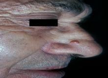 nerwiakowłókniak nosa
