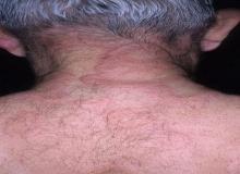obrzęk naczynioruchowy plecy