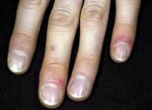 odmrożenia skóry ręka