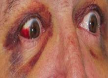 oko krwiak