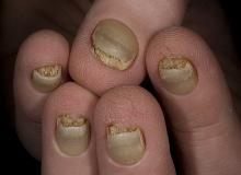 Wrodzone zgrubienie paznokci