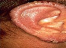 paraneoplastyczne rogowacenie