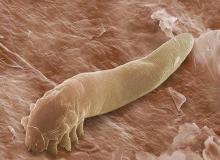 pasożyty ludzkie