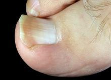 paznokieć wrasta w skórę