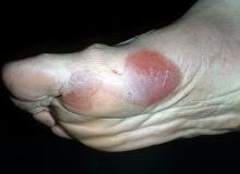 pęcherzyca stopa