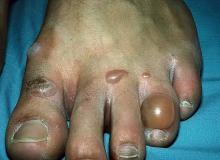 pęcherzyca stopa palce