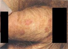 Grudkowatość bowenoidalna