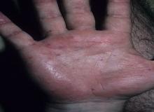 plamica schoenleina henocha na dłoni