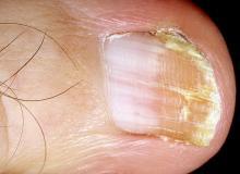 poprzeczne bruzdy na paznokciach u nóg