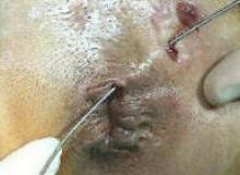 przetoka okołoodbytnicza operacja zdjecia