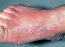przewlekłe zanikowe zapalenie skóry kończyn obraz