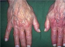 przewlekłe zanikowe zapalenie skóry kończyn wygląd
