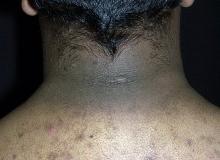 rogowacenie choroba skóry