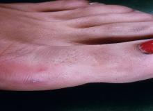 rzeżączka duży palec