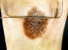 sarkoidoza objawy skóry