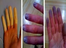 sinienie palców u rąk przyczyny