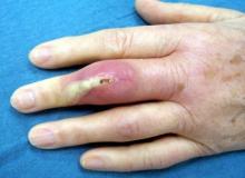 stan zapalny palca u ręki