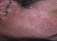 telangiectasia skin